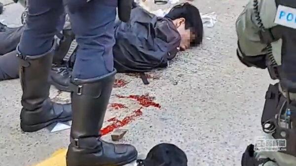 香港中枪男孩肾被打爆 一度失去心跳(视频)