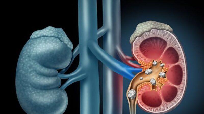 新药放松输尿管 减痛并加快排出结石