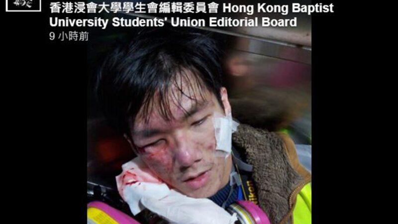 港警袭击记者 警棍敲头催泪弹射眼
