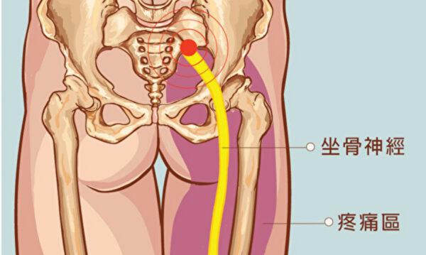 预防坐骨神经痛 中医师教按摩三穴道(组图)