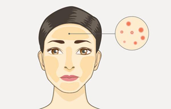 痘痘长不同部位 是哪个脏腑出问题?中医可治本(视频)