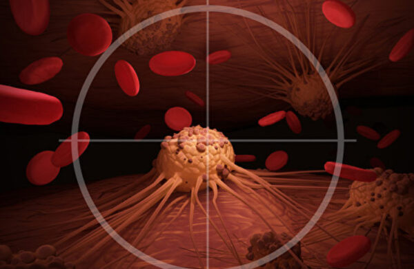 新型放射療法瞬間殺死腫瘤 卻不傷健康組織(組圖)