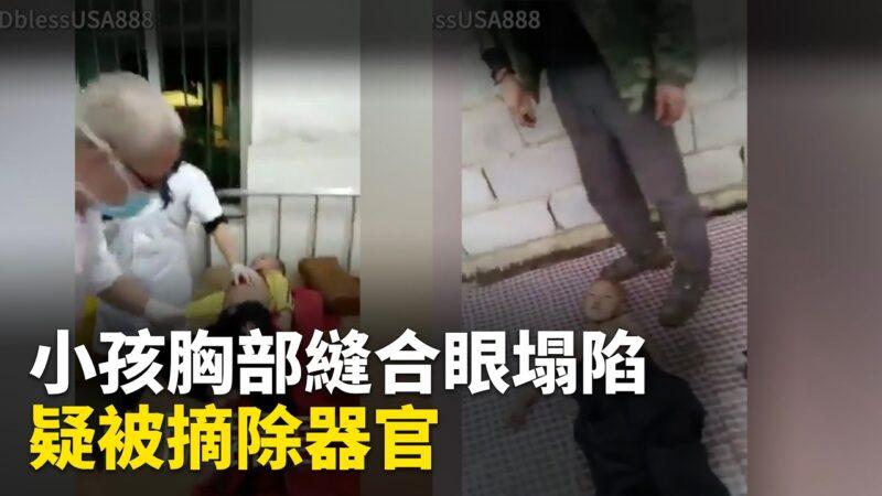 震惊!网传中国小孩尸体被缝 疑遭摘器官(视频)