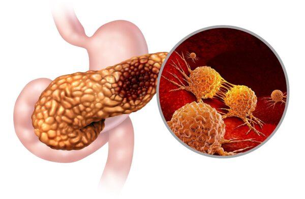 科学家发现最常见胰腺癌成因