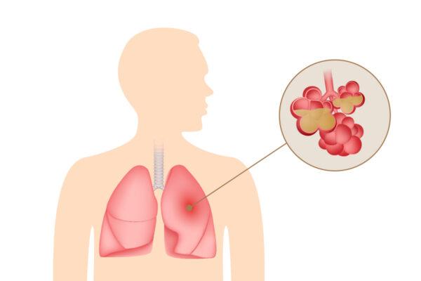 不只是咳嗽和发烧 肺炎的突出症状有哪些?(组图)