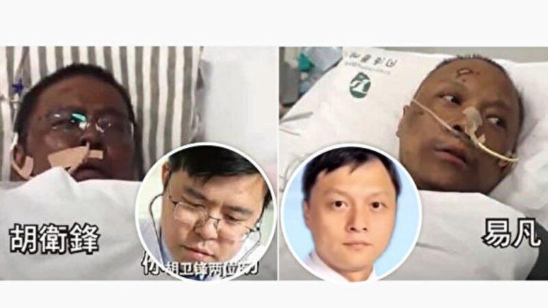 2名染疫醫師變黑人 中共病毒致肝損傷或超想像