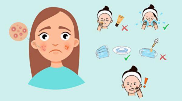 常戴口罩 带来2大皮肤病 第一名是它(组图)