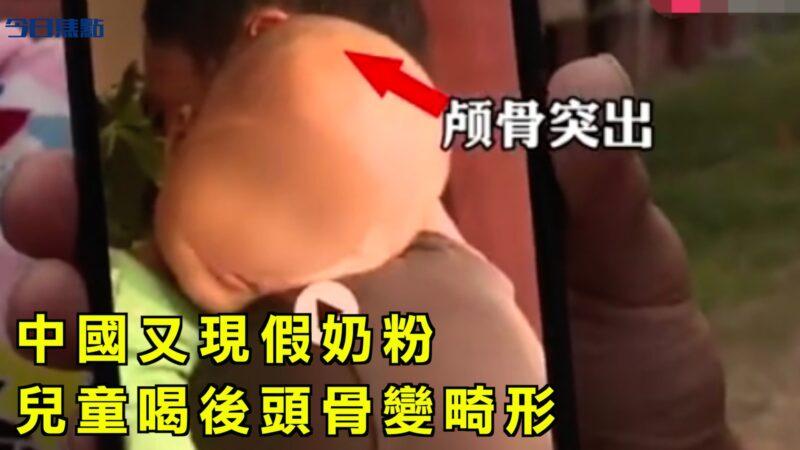 【今日焦点】中国又现假奶粉 儿童喝后头骨变畸形
