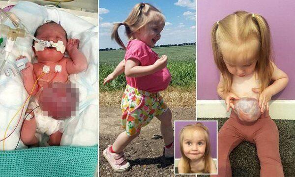英2歲女童先天臟器外露 肚子上長顆「球」