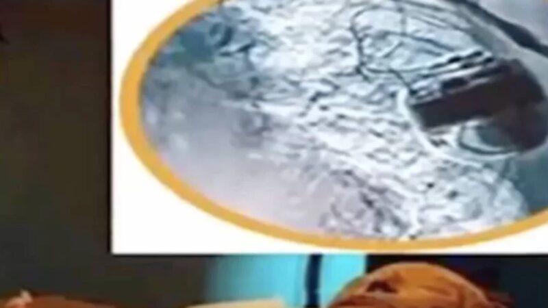 千年木乃伊竟裝有先進心臟起搏器 2000多年後仍在跳動