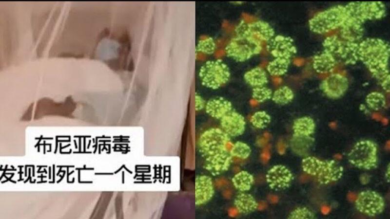 """《石涛聚焦》中共国再次爆发""""新型布尼亚病毒""""发病到死亡7天"""