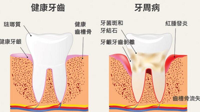 华人好发的口腔疾病──牙周病