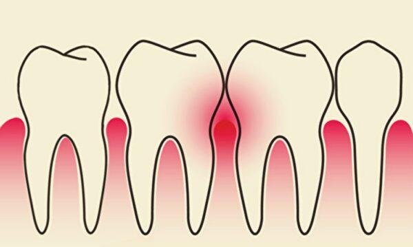 古今人都為牙齒所苦 中醫如何對付牙周病?