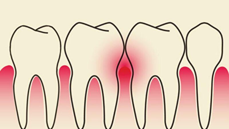 古今人都为牙齿所苦 中医如何对付牙周病?