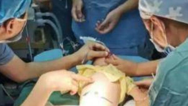 江西滿月男嬰生寶寶?醫剖腹取出四肢完整胎兒