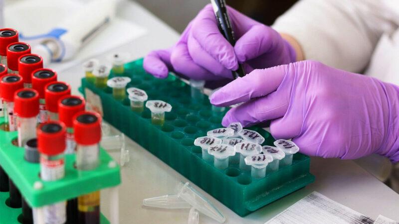"""耶鲁大学最新研究:中共病毒可""""劫持""""脑细胞并自我复制"""