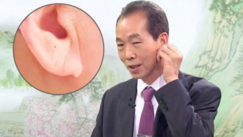 耳垂2徵兆恐是高血壓!不用血壓計的判斷方法