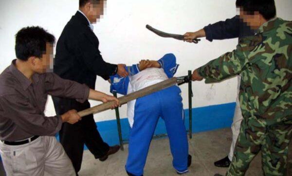 大庆监狱酷刑殴打 杨成山眼睛一度被打瞎