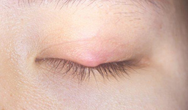 长针眼怎么办?针眼有哪些症状?中医告诉你
