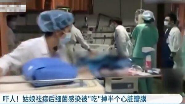 浙江20歲女大學生除痣 心臟被細菌「吃」掉一半