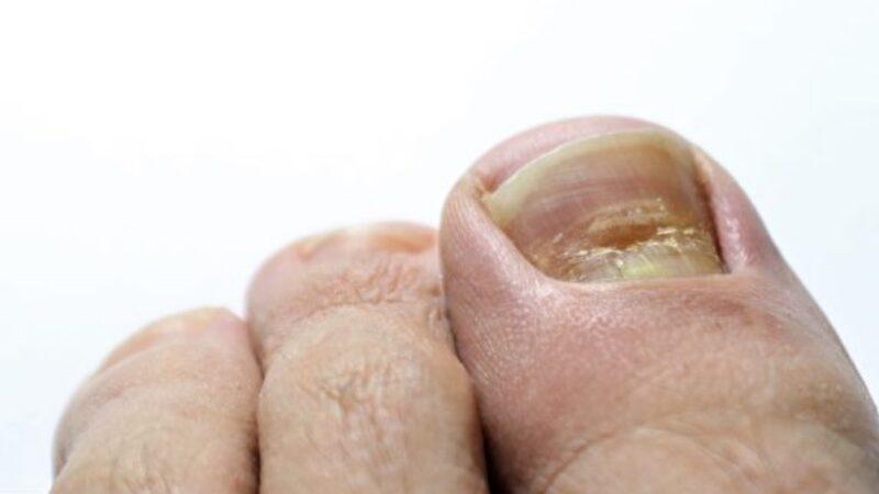 英国医生:若指甲有这种变化 你有可能染疫