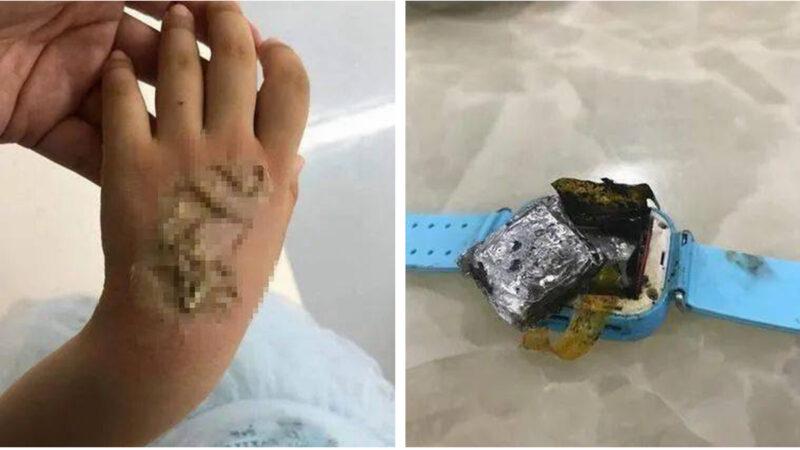 電話手錶自燃 福建4歲女童被嚴重燒傷