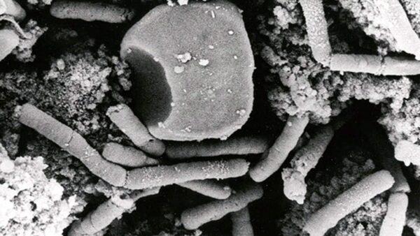 中共疾控中心最新報告:山東14歲學生感染炭疽死亡